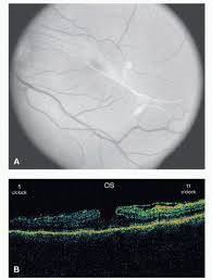 A Color Retinal Photograph OS Displaying Pseudohole From An Epiretinal Membrane With B Accompanying Optical Coherence Tomography OCT