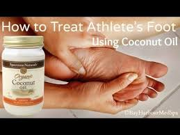 How to Naturally Treat Athlete s Foot DIY Using Coconut Oil
