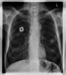 chambre implantable d馭inition cathéter à chambre implantable wikipédia