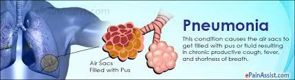 Pneumonia Treatment Home Reme s Causes Symptoms Types