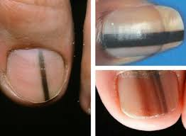Nail Bed Melanoma by An Overall View Of Your Health Seen Through Nail Problems Footality