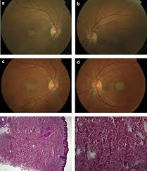 Angioid Streaks With Severe Macular Dysfunction And Generalised