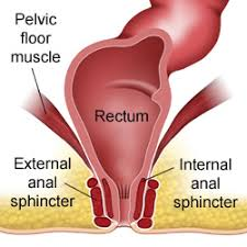 Pelvic Floor Muscle Spasm by Proctalgia Fugax