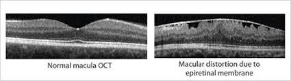 Macular Pucker Epiretinal Membrane