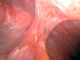 Uterus Lining Shedding Without Blood by Some Conditions Can Cause Severe Abdominal Pain Gastrointestinal