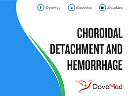 What Are The Other Names For This Condition Also Known As Synonyms Choroidal Detachment And Haemorrhage