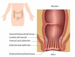 13 DIY Home Reme s For Hemorrhoids