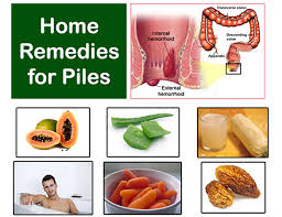 Home Reme s for Piles Natural Treatment