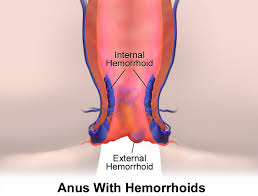 10 Home Reme s for Hemorrhoids How to Get Rid of Hemorrhoids