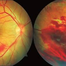 A Dispersed Preretinal Hemorrhages In The Lower Vascular Arch B Peripheral Contusive Edema