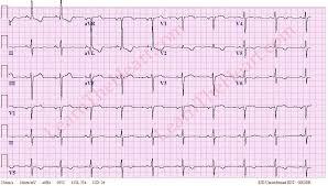Left Ventricular Hypertrophy ECG Example 4