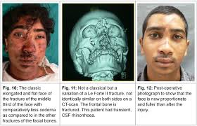 Orbital Floor Fracture Treatment by Chapter 36 Short Notes In Plastic Surgery