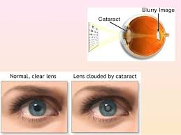 Christmas Tree Cataracts Causes by 6 Cataract