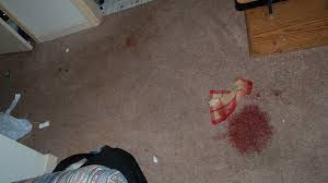 Remove Blood Stain From Carpet by Blood Stains Carpet U2013 Meze Blog
