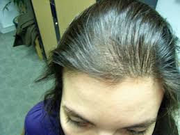 Minoxidil Shedding Phase Pictures by Black Women Hair Loss Treatment Click Image For More Details