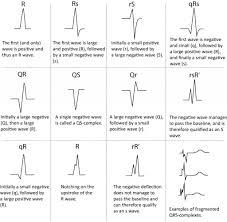 rr interval normal range interpretation characteristics of the normal p wave qrs