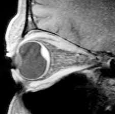 Choroidal Hemorrhage Of Eye MRI Scan