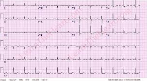 Atrial Flutter with 4 1 Conduction ECG 1