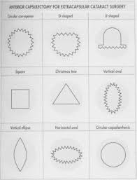 Christmas Tree Cataract Surgery by Phacoemulsification And Modern Cataract Surgery Sciencedirect