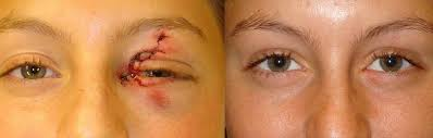 Orbital Floor Fracture Treatment by Eye Trauma Fracture Orbital Blow Out Treatment Beverly Hills