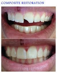 DENTAL BONDING Lela Dekano DDS – General Cosmetic Dentistry
