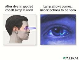 Woods Lamp Examination Images by Corneal Abrasion 2012 02 19