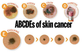 Links between Skin Cancer and Tanning Bed Usage