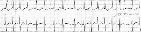 ECG Basics Atrial Fibrillation With a Rapid Ventricular Response