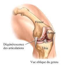 prothèse de genou opération et complications totale