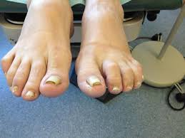 diagnosing and treating chemotherapy induced nail changes