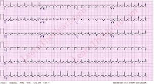 Atrial Flutter with 2 1 Conduction Example 1