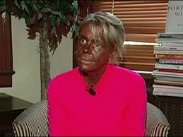 new jersey s tan mom may sue for daughter s sunburn