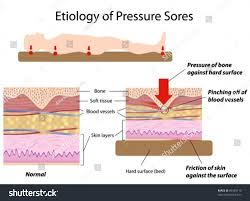 Bed Sores Pics by Causes Pressure Sores Stock Vector 89369110 Shutterstock