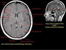 Normal Mri Brain