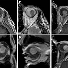 Characteristic Appearance Of Choroidal Melanoma On Mri Notes A High Intensity Signal