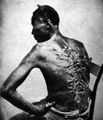 Scars On A Slave Who Was Whipped The Man In Picture Called Peter And Comes From Louisiana US Not Virgin Islands