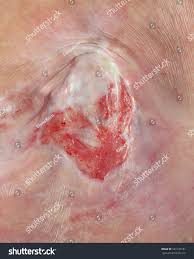 ulcer on buttocks bedsore pressure ulcers stock photo 541746181