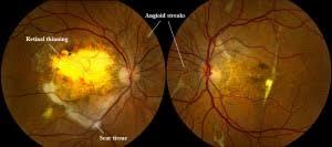 Angioid Streaks Retina 970 226 0959