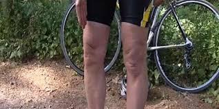 t genoux ligaments tendons