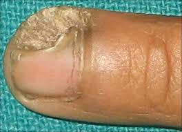 nail avulsion indications and methods surgical nail avulsion