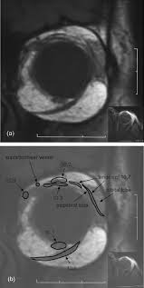 Orbital Floor Fracture Radiology by Anatomy Of The Visual System European Journal Of Radiology