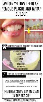Whiten Yellow Teeth and Remove Plague and Tartar Buildup Living