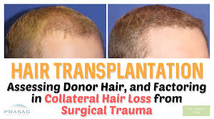 Rogaine Foam Shedding Phase by Hair Transplant Side Effects Cost Procedure
