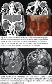 Orbital Floor Fracture Radiology by Multimodality Imaging Of The Orbit Hande Pc Talwar I Indian J