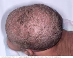 Cradle cap Symptoms and causes Mayo Clinic