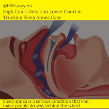 SCOTUS Refuses To Hear Trucking Sleep Apnea Case - 1800 Truck Wreck 118 Best Sleep Apnea Testing Images On Pinterest Ha Ha Trucking Industry Faces Ruling For Drivers Blog Virtual Labs Ep5 Youtube Helping Truckers Stay Awake The Road Talking And Apnoea Should Californias Truck Undergo Mandatory Commercial Deserve Better Costs For Dot Cpap America Sleep Apnea In Trucking Big Rig Banter Ep 17 2018 Sleepy How May Impact Safety Mayo Clinic Us Nixes Sleep Apnea Test Plan Truckers Train Engineers Trucking Industry Archives Surgical Solutions