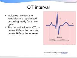 rr interval normal range ecgpedia presentation