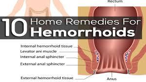 Internal Hemorrhoids Hemorrhoid Symptoms