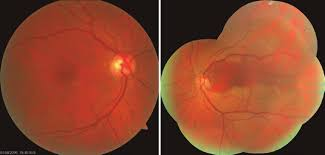 Figure 1 Pink Optic Disc With Sharp Margins A Cup Ratio Of 05 Increased Venous And Arterial Tortuosity Broadening Light Reflex In Arteries