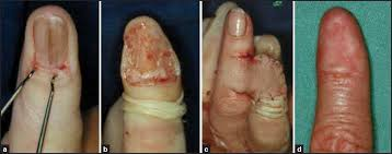 Nail Bed Melanoma by Advanced Nail Surgery Haneke E J Cutan Aesthet Surg